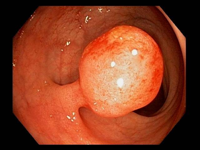 Colon Polyps: Symptoms, Types, Causes, Prevent & Pictures