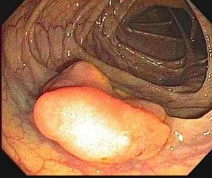 http://clinicfordigestivesurgery.com/media/colon-polyp.jpg