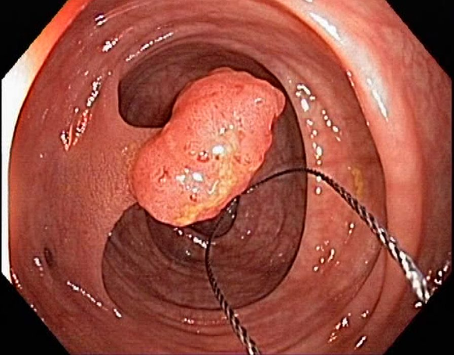 Endoscopy Polypectomy of Polyp of Descending Colon - YouTube