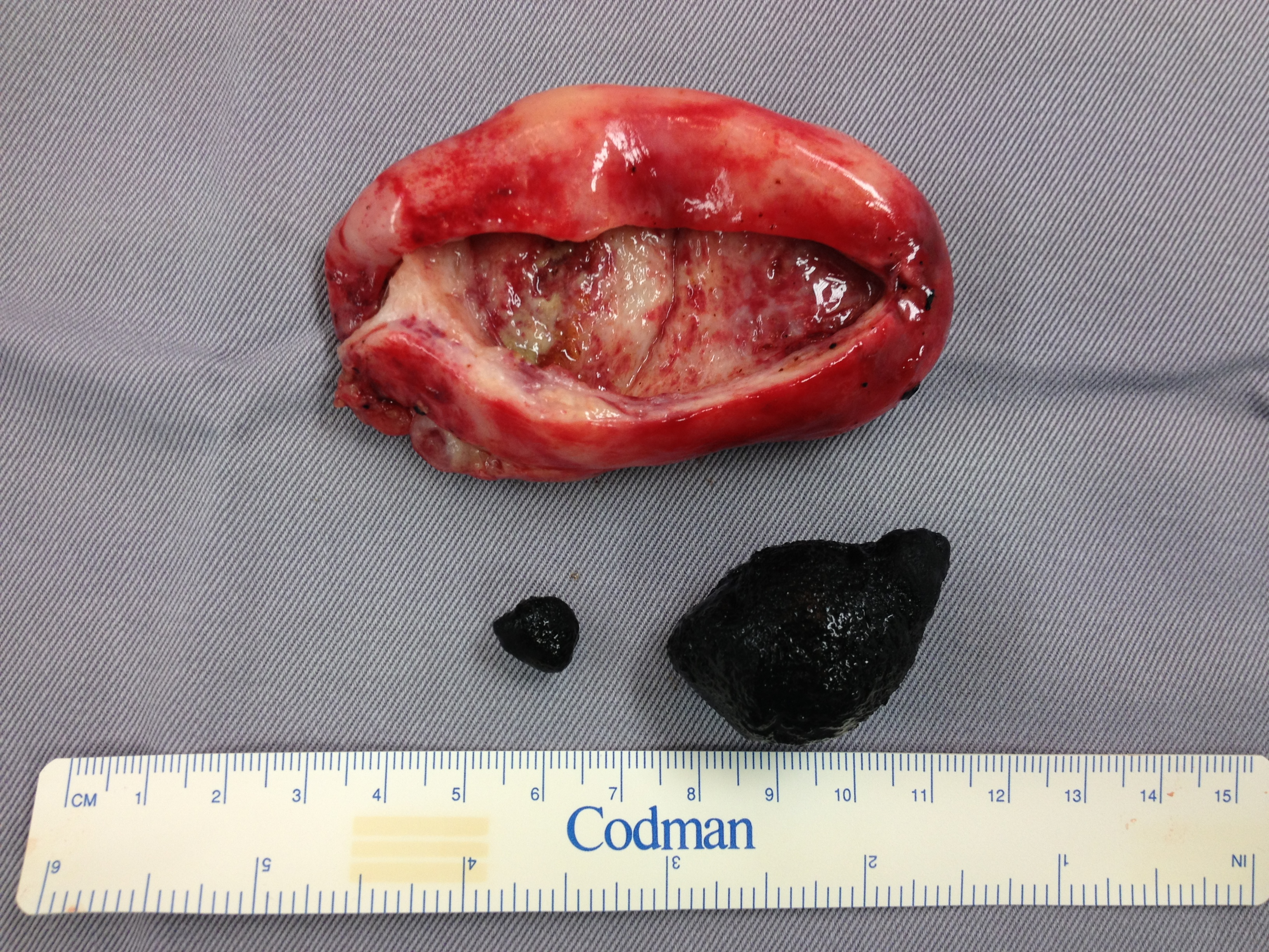 gallstone remove surgery